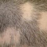 Алопеция — что это такое, причины и лечение алопеции