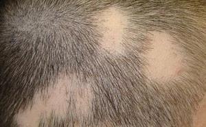 Алопеция – что это такое? Причины и лечение алопеции