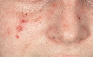 Демодекоз – что это такое? Фото, симптомы, лечение демодекоза