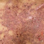 Истинная пузырчатка — фото, симптомы, лечение