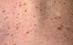 Кератома – что это такое? Фото, причины, лечение кератомы кожи