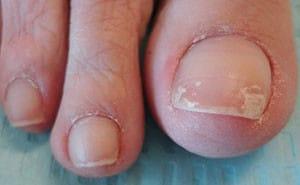 Онихомикоз – что это такое? Фото, лечение онихомикоза ногтей