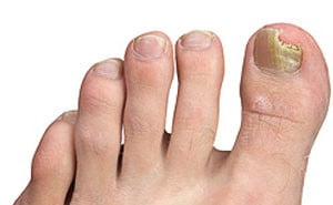 Руброфития: фото, лечение, симптомы