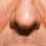 Себорея — что это такое? Себорея кожи головы — фото, лечение