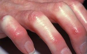 Склеродермия – что это такое? Фото, симптомы, причины, лечение