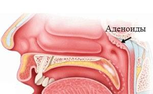 Аденоиды – что это такое? Симптомы, лечение, фото