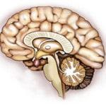 Адипозогенитальная дистрофия — причины, симптомы, лечение