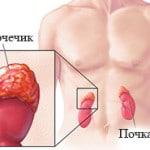 Адреногенитальный синдром — формы, симптомы, лечение