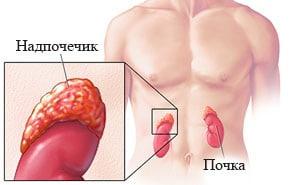 Адреногенитальный синдром: формы, симптомы, лечение