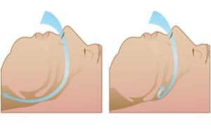 Апноэ – что это такое? Синдром апноэ сна: причины, симптомы, лечение