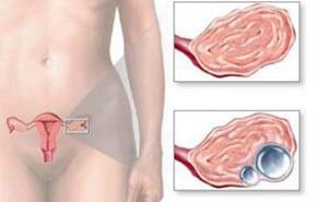 Апоплексия яичника: что это такое, симптомы, лечение