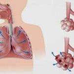 Баротравма легких — причины, симптомы, лечение