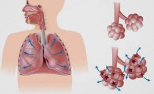 Баротравма легких: причины, симптомы, лечение