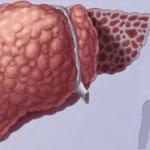 Болезнь Вильсона-Коновалова — диагностика, симптомы, лечение