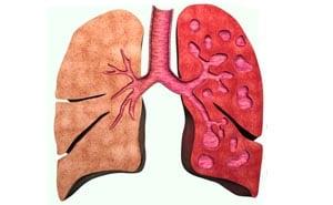Бронхоэктатическая болезнь легких: симптомы, лечение