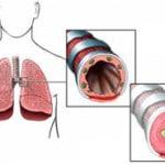 Что такое бронхиальная астма, причины, симптомы, лечение