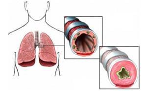 Что такое бронхиальная астма? Причины, симптомы, лечение