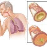 Что такое бронхит, причины, симптомы, лечение