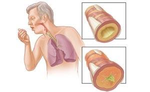 Что такое бронхит? Причины, симптомы, лечение