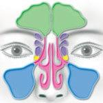 Что такое хронический гайморит и как его лечить