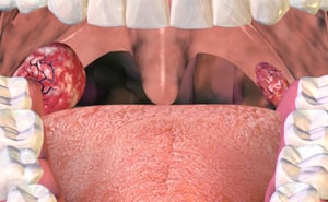 Что такое хронический тонзиллит и как его лечить