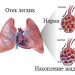 Что такое отек легких, симптомы, причины, лечение