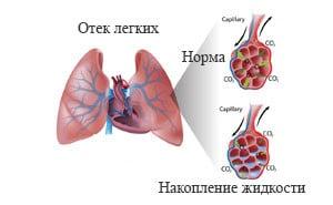 Симптомы отека легких