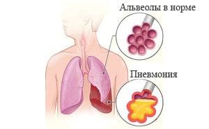 Что такое пневмония и чем она опасна