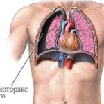Что такое пневмоторакс легкого, причины, симптомы, лечение