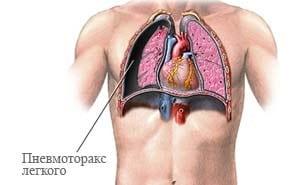Что такое пневмоторакс легкого? Причины, симптомы, лечение