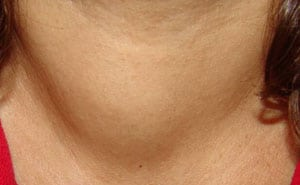 Что такое узловой зоб щитовидной железы: симптомы и лечение