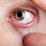 Диабетическая ретинопатия — что это такое, симптомы, лечение