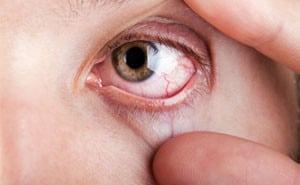 Диабетическая ретинопатия: что это такое, симптомы, лечение