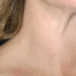 Диффузный токсический зоб — симптомы, лечение