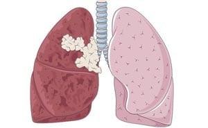 Доброкачественные опухоли легких: симптомы, лечение