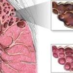Эмфизема легких — что это такое, как лечить, симптомы, фото