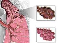 Эмфизема легких - что это такое, как лечить, симптомы, фото