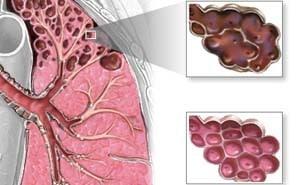 Эмфизема легких: что это такое, как лечить, симптомы, фото