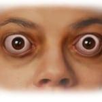 Эндокринная офтальмопатия — фото, симптомы и лечение