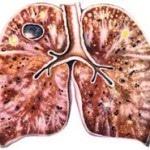 Фиброзно-кавернозный туберкулез легких — причины, симптомы, лечение