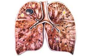 Фиброзно-кавернозный туберкулез легких: причины, симптомы, лечение