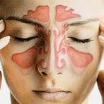 Гайморит — что это такое, симптомы, лечение