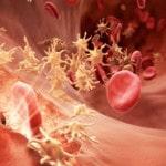 Гемофилия — что это такое, фото, симптомы, лечение