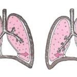 Гидроторакс — что это такое? Гидроторакс легких и его лечение