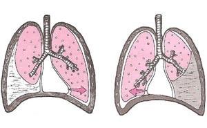 Гидроторакс: что это такое? Гидроторакс легких и его лечение