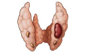 Гиперпаратиреоз: что это такое, симптомы, диагностика, лечение