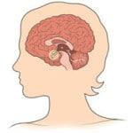 Гиперпролактинемия — что это такое, симптомы, лечение