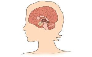 Гиперпролактинемия: что это такое, симптомы, лечение