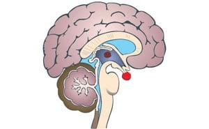 Гипофизарный нанизм: что это такое, симптомы, лечение