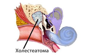 Холестеатома – что это такое? Симптомы, лечение холестеатомы уха